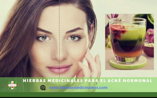 6 Hierbas Medicinales Para El Acne Hormonal Hierbasmedicinaless Com