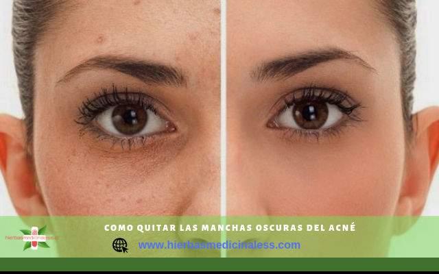 quitar manchas por el acne