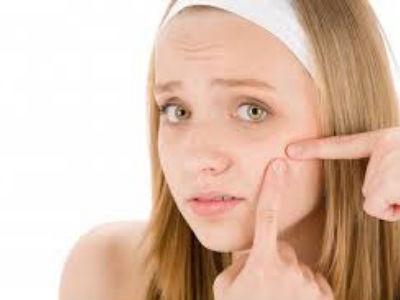 remedios caseros para combatir el acné juvenil