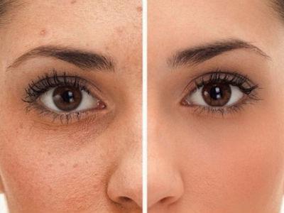 como quitar manchas de acne con remedios caseros