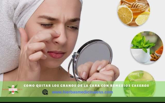 remedios caseros para acné juvenil