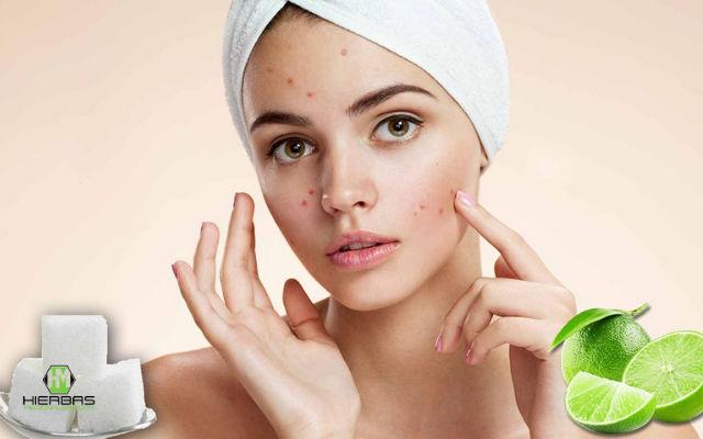 como preparar la mascarilla de limon para el acne