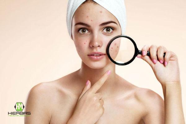 principales causas que provocan el acné