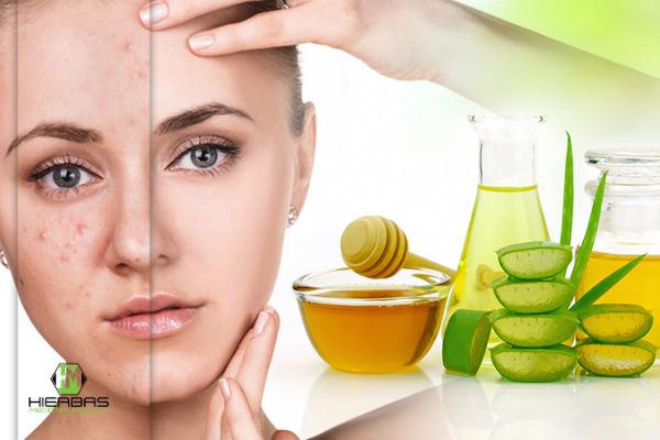 tratamientos para el acne y espinillas