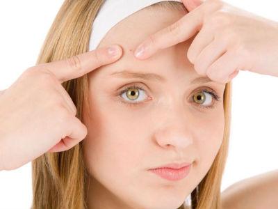 remedios para combatir el acne