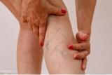 Plantas medicinales para el tratamiento natural contra la varices de las piernas