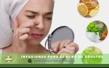 Infusiones para el acné en adultos