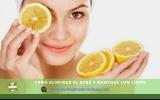 Cómo usar el limón para el acné