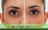 Como quitar las manchas del Acné :Mascarillas para quitar Manchas