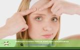 Remedios Caseros para el Acné para Adolescentes